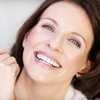 Up to 75% Off Microdermabrasion