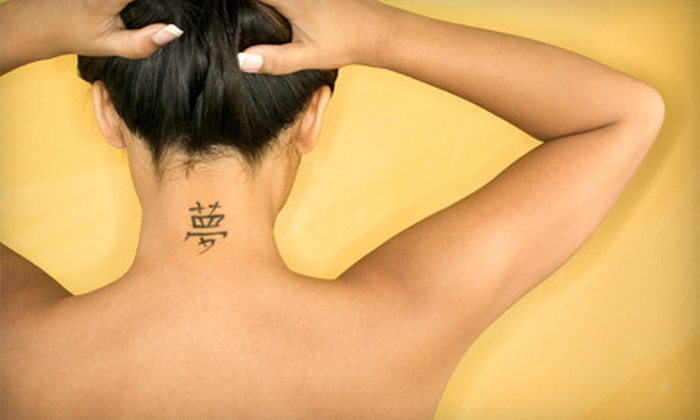 Intrigue - Multiple Locations: One, Three, or Six Laser Tattoo Removals at Intrigue (Up to 84% Off)