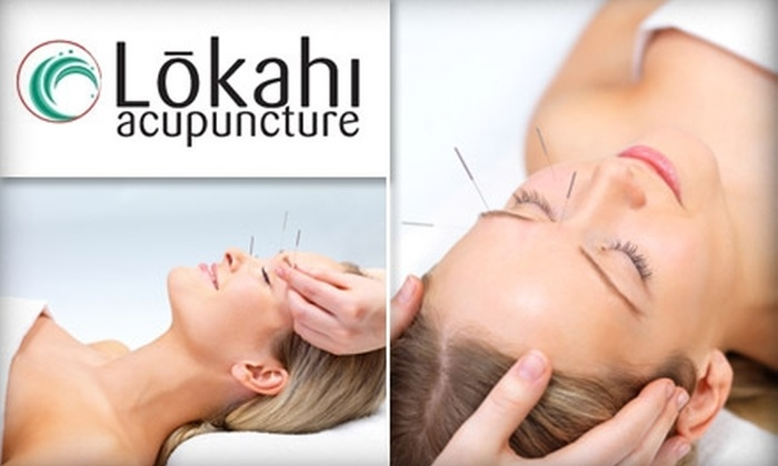 Lokahi Acupuncture - Central San Jose: $29 for Initial Consultation and 60-Minute Treatment with Katy Barry, Licensed Acupuncturist, at Lokahi Acupuncture ($125 Value)