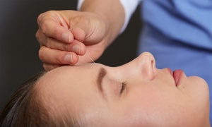 AB Acupuncture: One or Two Acupuncture or Needleless-Acupuncture Sessions at AB Acupuncture (Up to 56% Off)