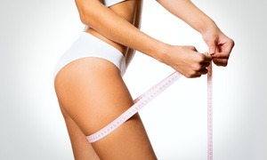 Charisma Skin Studio: From $59 for Laser Lipo on Two Areas at Award-Winning Charisma The House of Beauty, Stirling (From $350 Value)