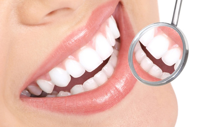Flawless Dental Group - Lawncrest: $52 for Dental Exam, X-rays and Cleaning at Flawless Dental Group ($195 Value)