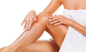 Pelayo Cosmetic Center: Evaluation and 25 or 50 Sclerotherapy Injections and Lab Work at Pelayo Cosmetic Center (Up to 73% Off)