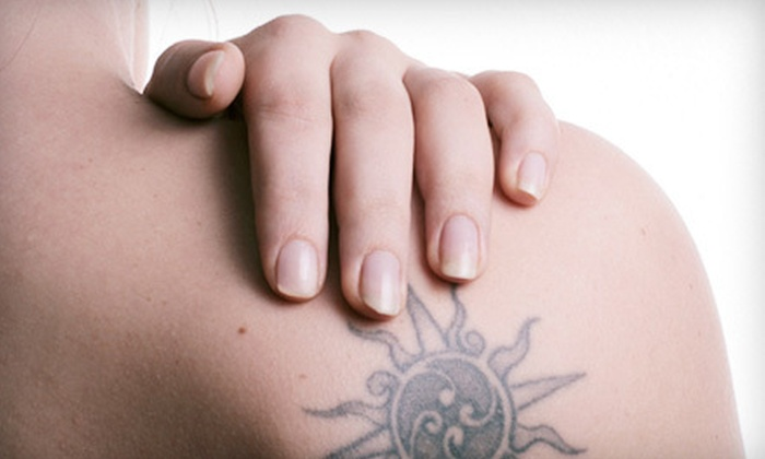 Laser Ink Removals - Calgary: Three Laser Tattoo-Removal Treatments on a 4-, 6-, or 10-Square-Inch Area at Laser Ink Removals (Up to 67% Off)