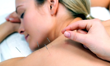 One or Three Acupuncture or Chiropractic Treatments at Oaktree Chiropractic & Acupuncture (Up to 88% Off)