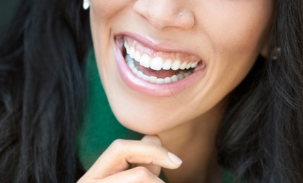 Dental Exam with X-rays and Cleaning, Teeth Whitening, or Both at Platinum Dental Group (Up to 87% Off)
