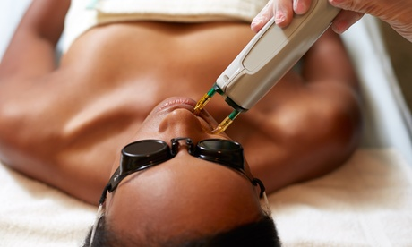 Laser Hair Removal at Clarendon Nails & Spa (Up to 83% Off). Five Options Available. 6735f57c-1739-4d75-9203-4bf27c764c8b