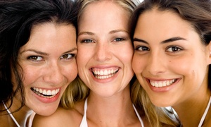 The Chicago Family Dental Center: Zoom! Whitening In-Office Treatment or Take-Home Whitening Trays at The Chicago Family Dental Center (Up to 72% Off)
