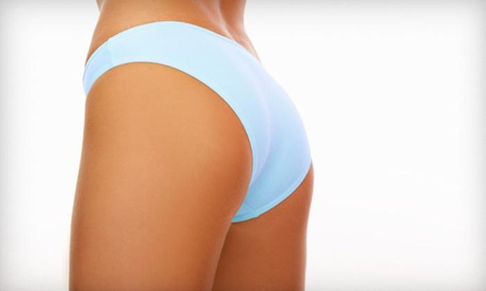 Spa Jolie - Spa Jolie: Six Cavi-Lipo or Zerona Body-Contouring Treatments at Spa Jolie (Up to 80% Off)