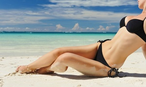 Figarola Medical Aesthetics: Six Laser Hair-Removal Treatments on a Small, Medium, or Large Area at Figarola Medical Aesthetics (Up to 55% Off)