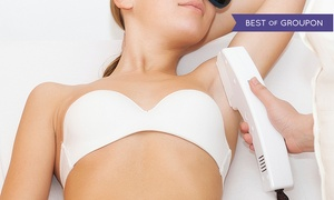 MI Body Contour: $230 for One Year of Unlimited Laser Hair Removal for Up to Six Areas at MI Body Contour ($7,200 Value)