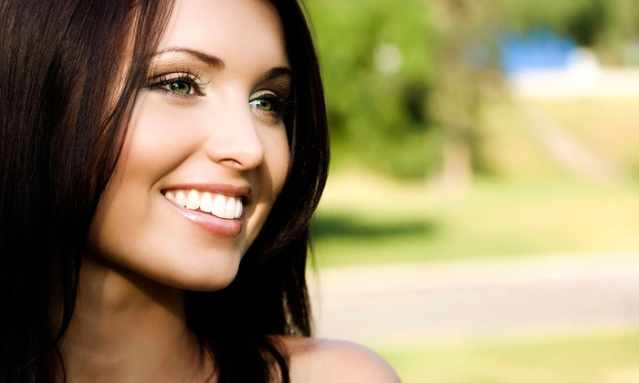 Apt Dental Associates - Multiple Locations: 4, 6, 8, or 10 Veneers at Apt Dental Associates (55% Off)