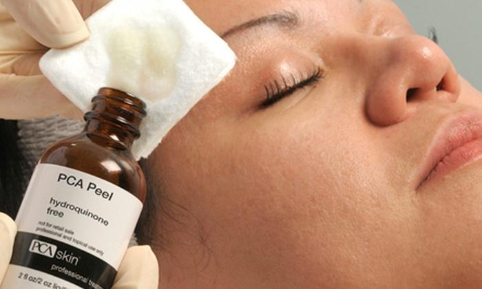 The Skin Loft - The Skin Loft: Chemical Peel at The Skin Loft (50% Off)