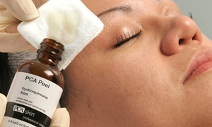 Exhale with Calli: Chemical Peel from Exhale Skin Care Studio (50% Off)