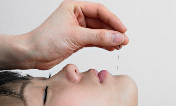 Essence of China Acupuncture and Herb Clinic - Multiple Locations: $45 for a 60-Minute Acupuncture Session with Consultation at Essence of China Acupuncture and Herb Clinic ($95 Value)