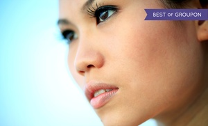 Serenity Aesthetic Center: Two Microdermabrasion Treatments and Medical-Grade Peels (70% Off)