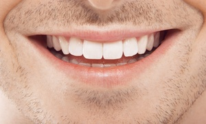 Limpieza bucal con ultrasonidos por 14,90 € y con 1 o 2 blanqueamientos Led desde 54,90 €