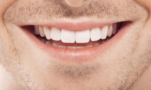 UNION DENTAL: Limpieza bucal con ultrasonidos por 14,90 € y con 1 o 2 blanqueamientos Led desde 54,90 €