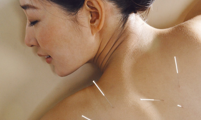 Matt Beigle Acupuncture and Wellness - Point Breeze: One or Four Acupuncture Sessions at Matt Beigle Acupuncture and Wellness (48% Off)