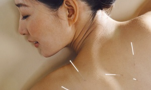 Matt Beigle Acupuncture and Wellness: One or Four Acupuncture Sessions at Matt Beigle Acupuncture and Wellness (48% Off)