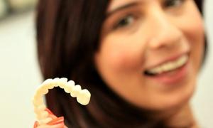 K Line Europe GmbH: Individueller Zahnaufsatz K Lamina für einen oder beide Kiefer (bis zu 54% sparen*)