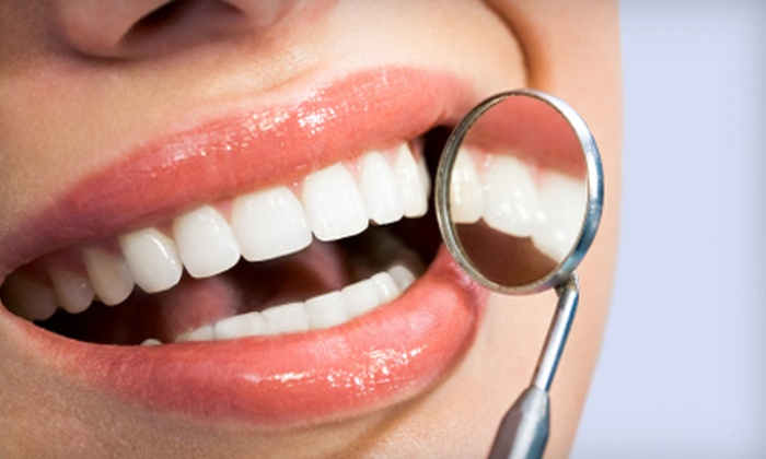 Edent - Pacific Beach: $120 for a Pola Teeth-Whitening Treatment at Edent ($420 Value)
