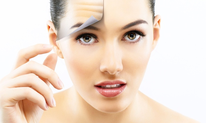 ellehomme Holistic Med Spa - Near West Side: $145 for 20 Units of Botox at ellehomme Holistic Med Spa ($320 Value)