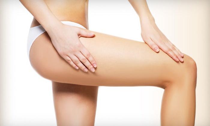 Déjà Vu European Spa & Salon - North Richland Hills: Three or Six Cellulite Treatments at Déjà Vu European Spa & Salon (Up to 65% Off)