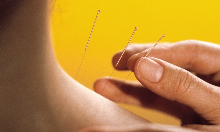 The Spinal Correction & Wellness Center - North Bethesda: $79 for Exam and Two Acupuncture Sessions at The Spinal Correction & Wellness Center ($325 Value)