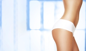 OSM Cosmetic Clinic: One, Three or Six Sessions of Ultrasound Cavitation at OSM Cosmetic Clinic (Up to 62% off)