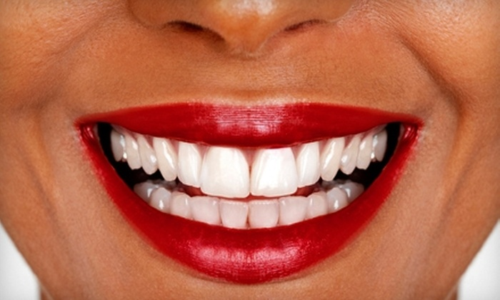 Planet Beach - Exton: $89 for Three Teeth-Whitening Sessions at Planet Beach in Exton (Up to $260 Value)