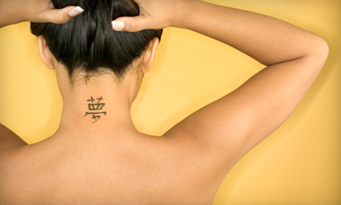 San Diego Laser Removal - College East: Laser Tattoo Removal at San Diego Laser Removal (Up to 70% Off). Two Options Available.