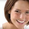 76% Off Teeth Whitening at Smile Splendor