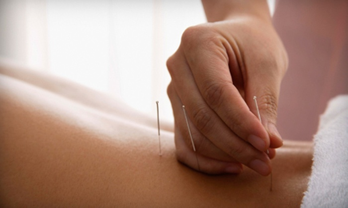 North Liberty Acupuncture - Wickham: $35 for a Japanese-Style Acupuncture Treatment at North Liberty Acupuncture ($60 Value)