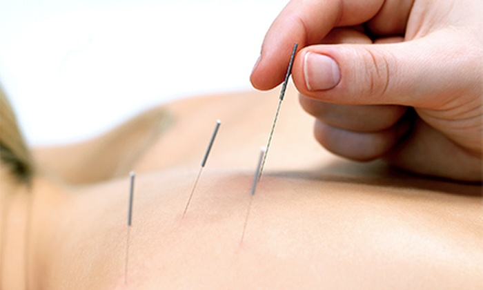Natural Medicine Center of Lakeland - Hilker Heights: One or Three Acupuncture Sessions at Natural Medicine Center of Lakeland (Up to 65% Off)