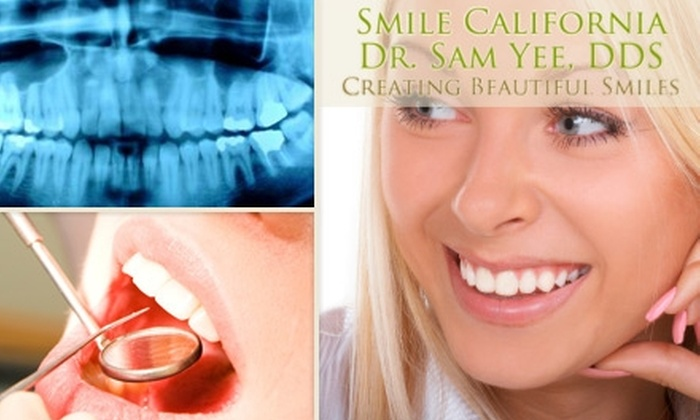 Samuel H. Yee, DDS - Aliso Viejo: $59 for an Oral Exam, Teeth Cleaning, and X-rays from Samuel H. Yee, DDS ($396 Value)