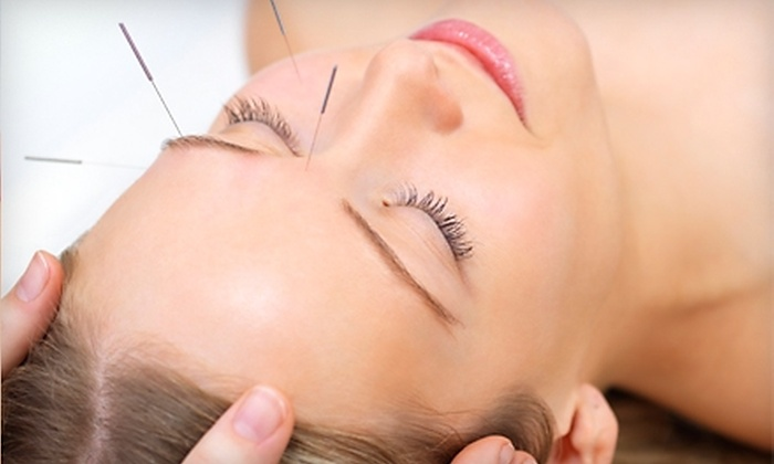 Origin Natural Care - Pasadena: $60 for Cosmetic Acupuncture or Meridian Therapy at Origin Natural Care in Pasadena (Up to $150 Value)