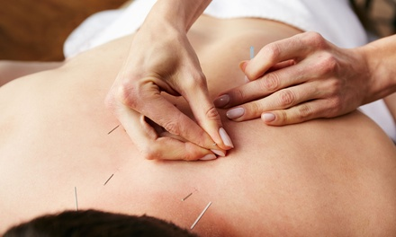 $39 for 60-Minute Acupuncture Session with Consultation at Maryland Holistics ($125 Value)