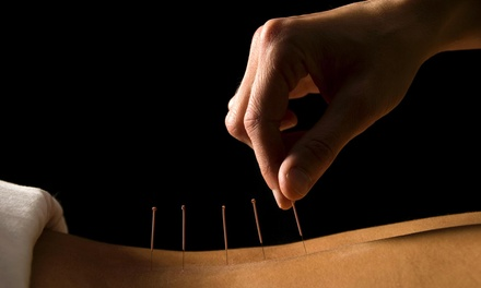 Four Acupuncture Treatments and an Initial Consultation at The Mandala Center:Behavioral Health &Wellness (65% Off)