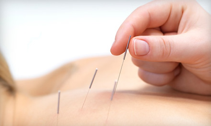 Charleston Acupuncture - French Quarter: One or Three Acupuncture Treatments at Charleston Acupuncture (Up to 92% Off)