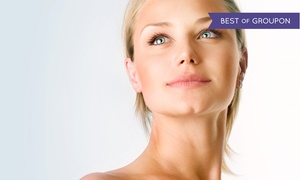 Calista Skin & Laser Center: $219 for Up to 20 Units of Botox and a Photofacial at Calista Skin & Laster Center ($409 Value)