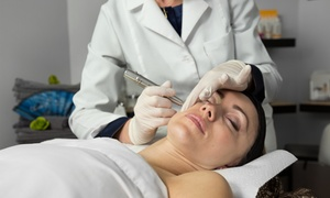 DVida Body & Skin Care: One or Two IPL Photofacials at DVida Body & Skin Care (Up to 76% Off)