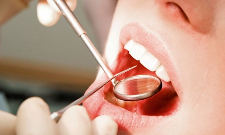 Dental Exam with Cleaning and X-rays, In-Office Zoom! Whitening, or Both at Chantilly Dental Center (Up to 75% Off)