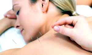 ON Acupuncture Clinic: One or Three 60-Minute Acupuncture Sessions at ON Acupuncture Clinic in Coquitlam (Up to 57% Off)