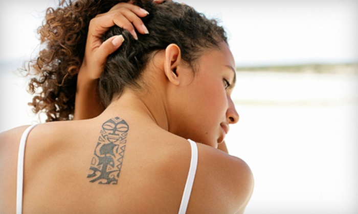 "Mystique Medical Spa - Woodward Park: Three 2""x2"", 3""x3"", or 4""x4"" Laser Tattoo-Removal Sessions at Mystique Medical Spa (Up to 72% Off)"