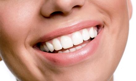Wybielanie zębów PureLite