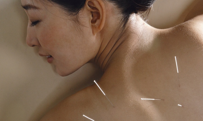 Total Rejuvenation Center - South Scottsdale: One or Two Acupuncture Sessions with a Consultation at Total Rejuvenation Center (Up to 77% Off)