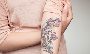 M.D. Beauty Labs: Laser Tattoo Removal for a Small, Medium, or Large Area at M.D. Beauty Labs (Up to 75% Off)