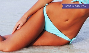 Enigma Medi Spa: Laser Hair Removal at Enigma Medi Spa (Up to 92% Off). Four Options Available.