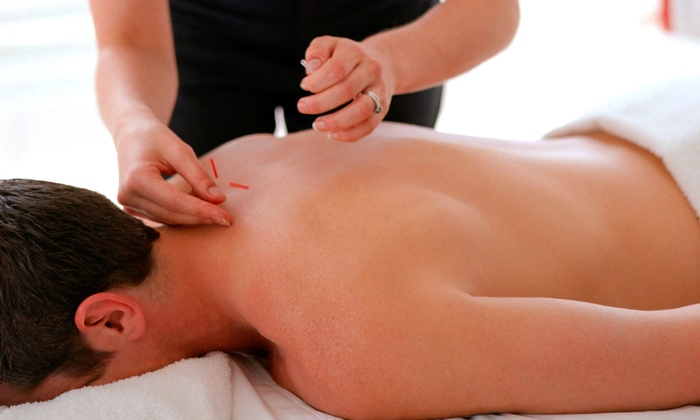 Seattle Acupuncture & Pain Management - Montlake: Acupuncture Sessions at Acupuncture at Seattle Acupuncture & Pain Management (Up to 79% Off)